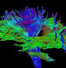 About NeuroGrafix